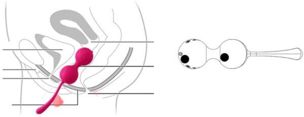 zavedeni kocky na stimulaci panevniho dna